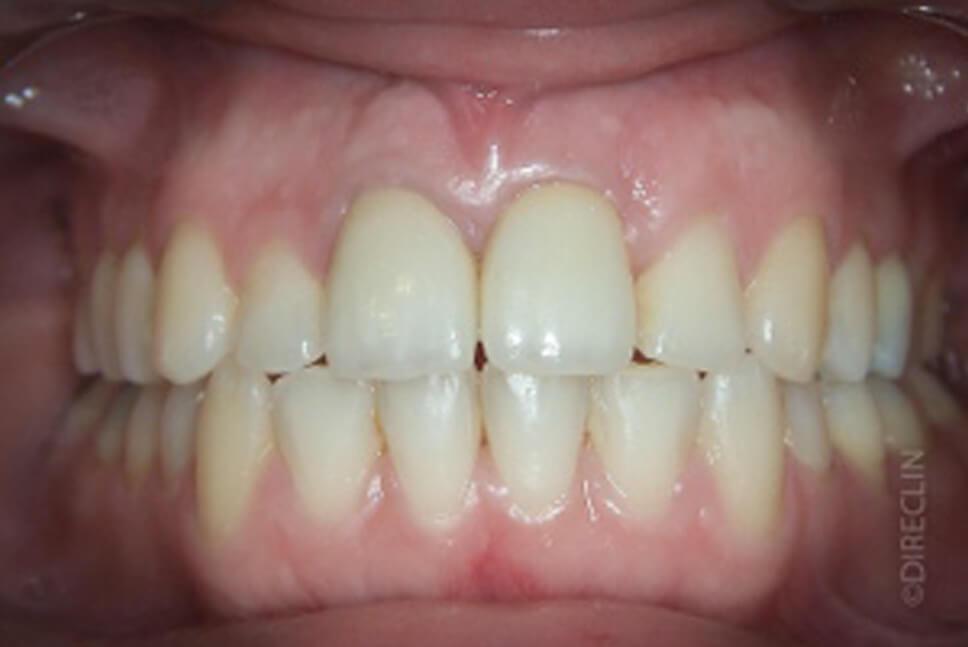 Direclin - Ortodontia e Implante 3
