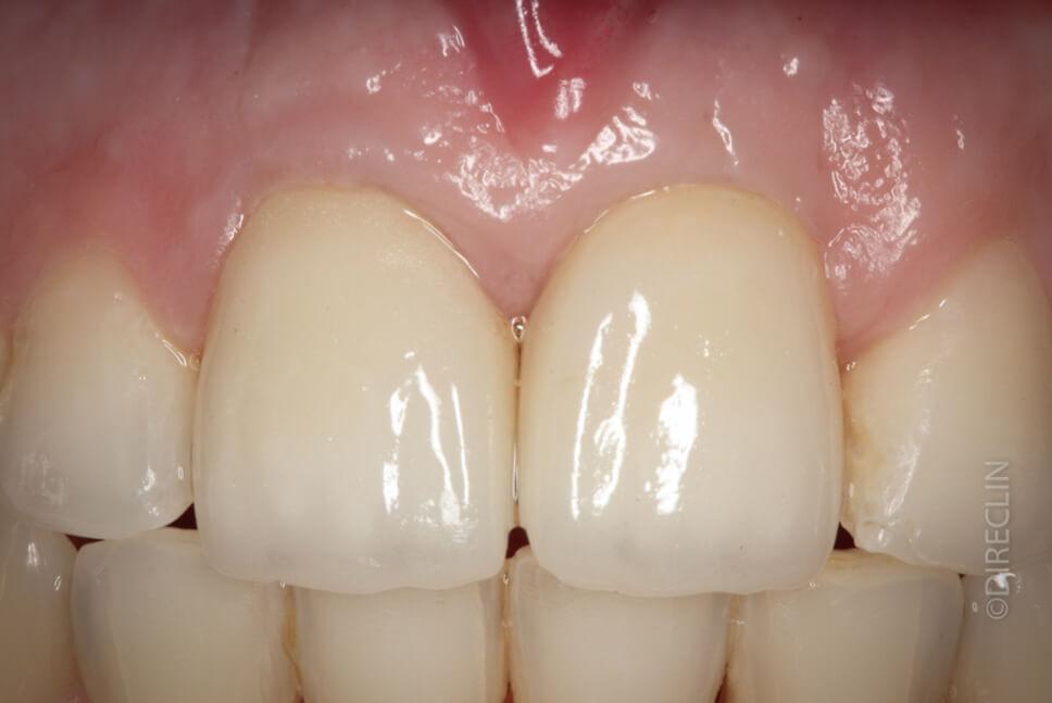 Direclin - Ortodontia e Implante