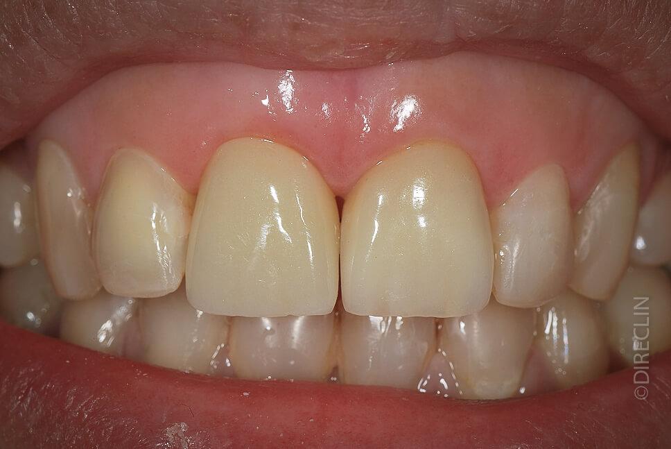 Direclin - Implante Dentário 3