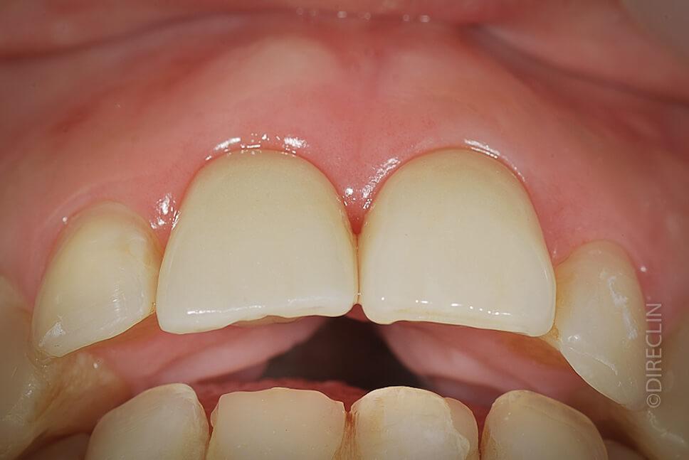 Direclin - Implante Dentário 2