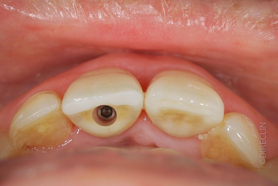 Direclin - Implante Dentário 1