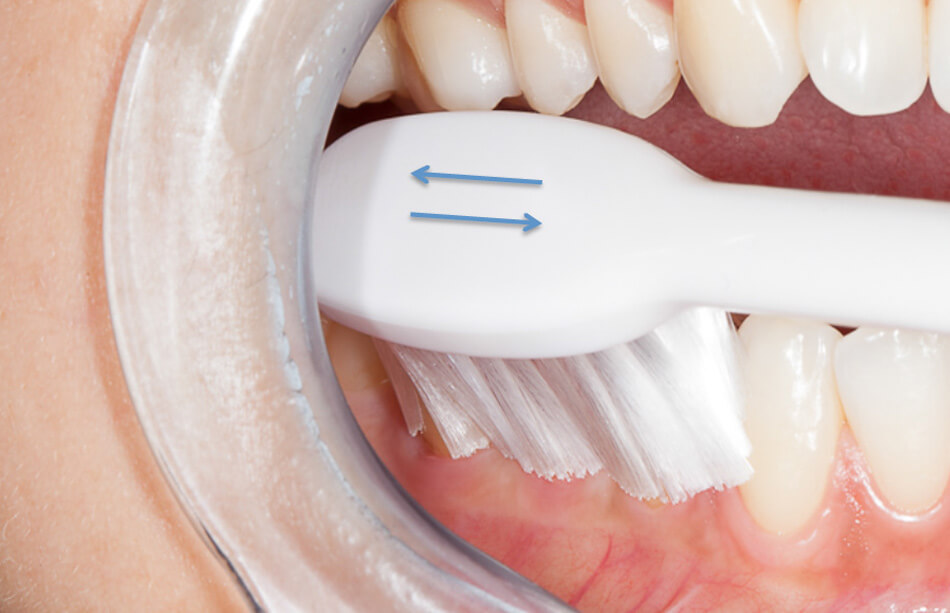 Direclin - Dicas Higiene Oral 7
