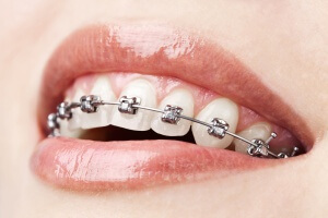 Orthodontics-Occlusion