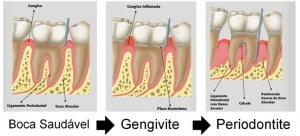 periodontologia-Cirurgia-Oral-Implantes