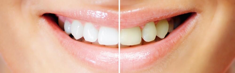 Branqueamento Dentário – Saiba Como Branquear os Dentes Sem Complicações