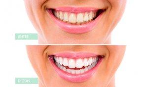 Antes e Depois branqueamento dentario