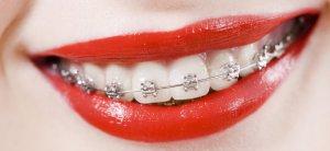 Exemplo Aparelho Dentário