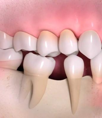 Deterioração do osso maxilar