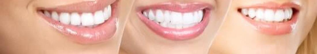 Branqueamento Dentário – Sim ou Não?