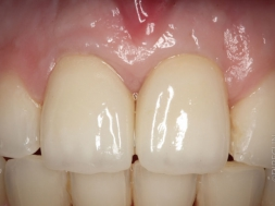 Orthodontie et implant dans l'incisive centrale