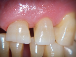 Advanced chronic periodontitis
