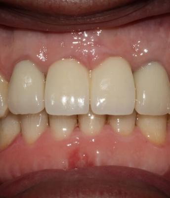 Implantes dentários nos incisivos centrais