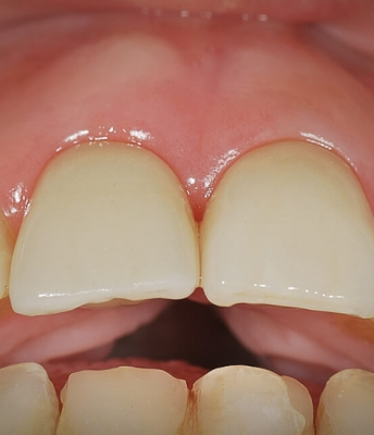Implante dentário unitário