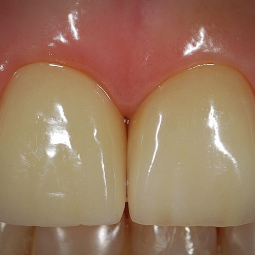 Direclin - Implante Dentário