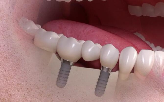 Several teeth with implant-supported solution