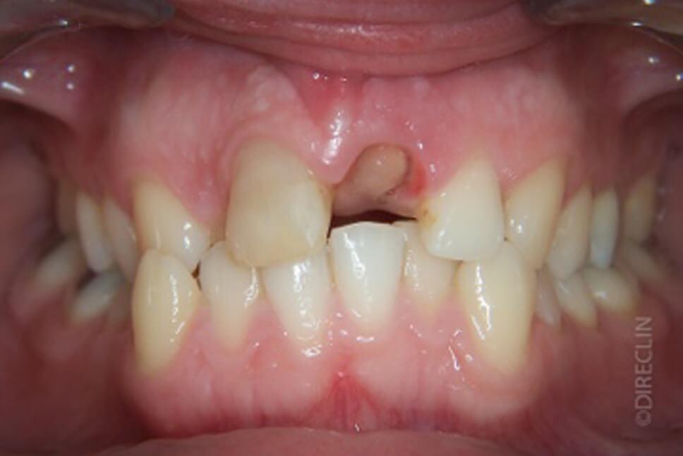 Direclin - Ortodontia e Implante 6