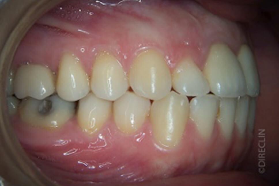 Direclin - Ortodontia e Implante 4