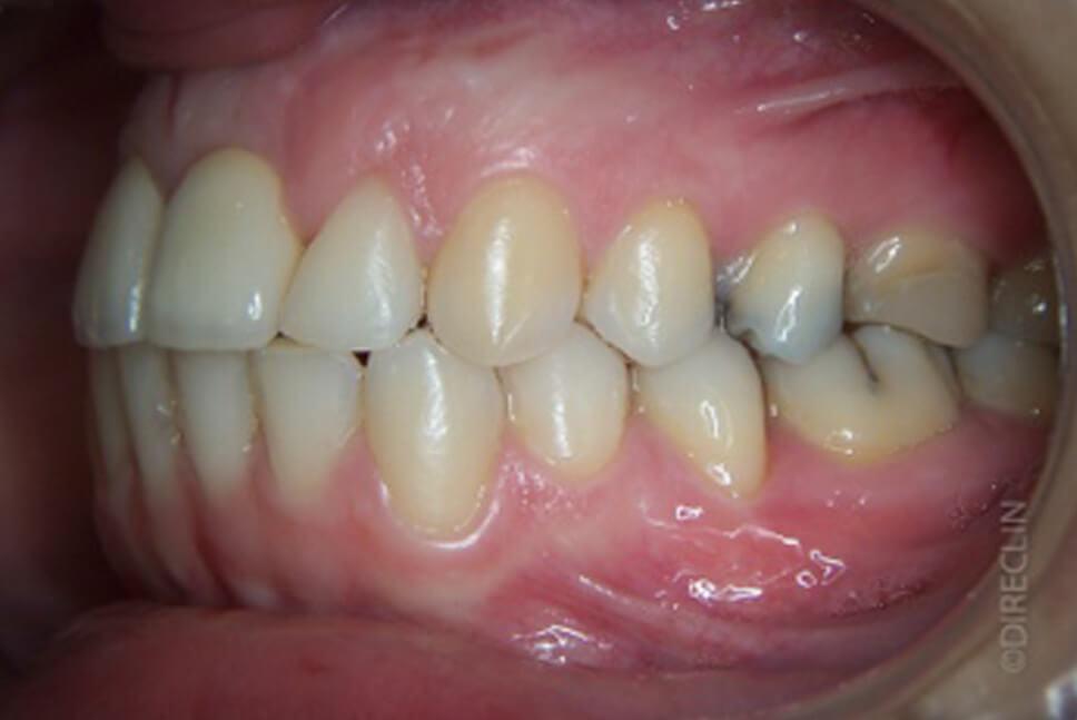 Direclin - Ortodontia e Implante 2