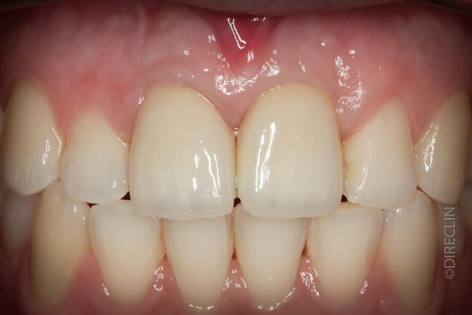 Direclin - Ortodontia e Implante 1