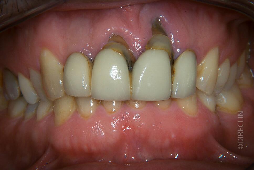 Direclin - Implante Dentário Incisivos 1