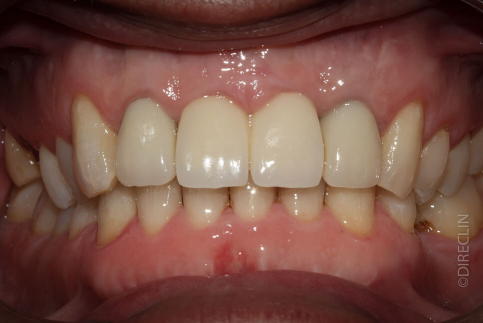 Dental implants in the central incisors