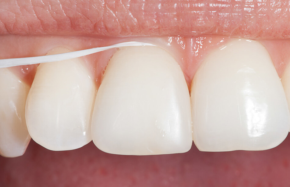 Direclin - Dicas Higiene Oral 1