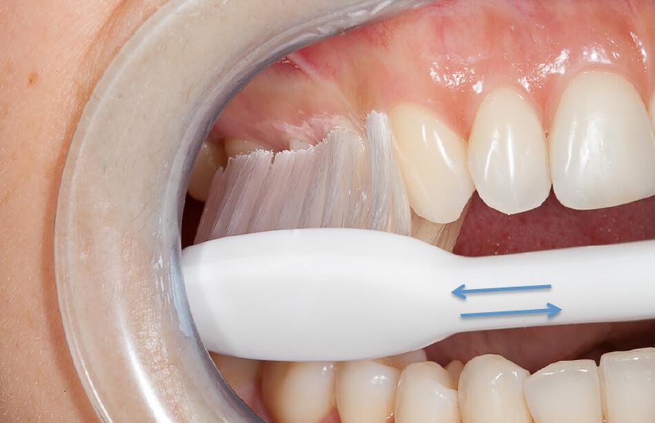 Direclin - Dicas Higiene Oral 4