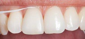 fio-dentario-higiene-oral