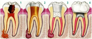 Endodoncia-desvitalizacao