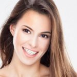 Sorriso com Aparelho Dentario