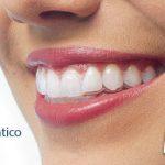 aparelho dentário invísivel - invisalign
