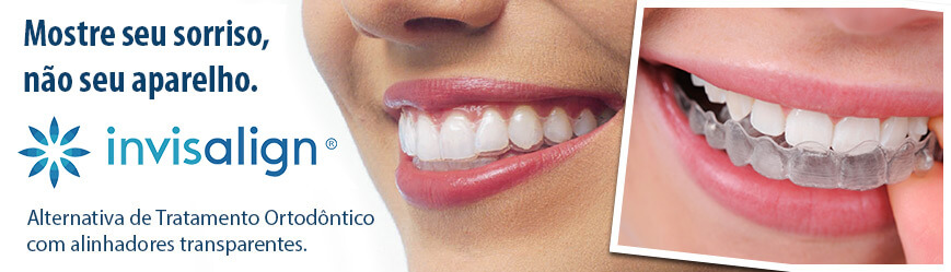Aparelho Dentário Invisível: em que consiste?